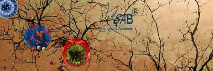 Signalway Antibody